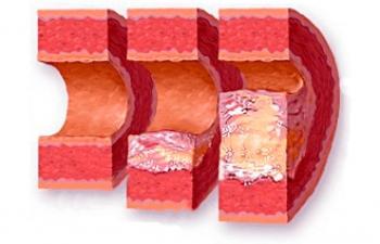 Атеросклероз: патогенез, лечение