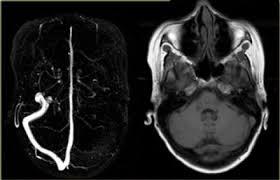 Тромбоз мозговых вен и синусов