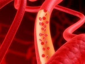 9 продуктов для очищения артерий и вен
