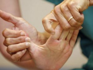 Сбой в биоритмах может спровоцировать инсульт?