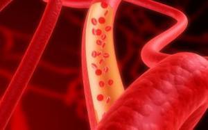 Арбуз снижает уровень холестерина и лишний вес