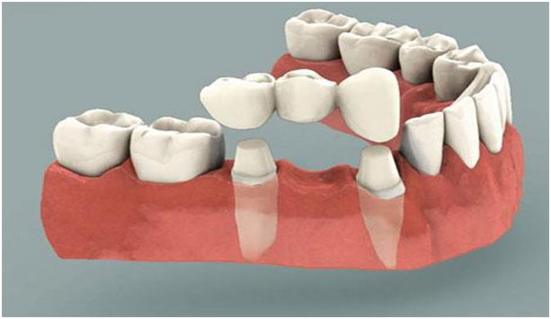 Коронки на зубы. Современные варианты