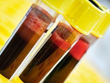 Теперь определить риск туберкулеза можно по анализу крови