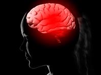 Исследователи нашли белок, который способен защитить мозг от последствий инсульта