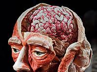 Уникальный случай: мозг человека функционировал даже после смерти