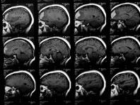 Сканирование мозга поможет определить вероятность развития наркомании у подростков