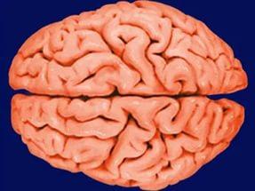 Идентифицированы новые гены, связанные с размером мозга