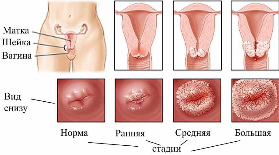 Как лечить заболевания матки