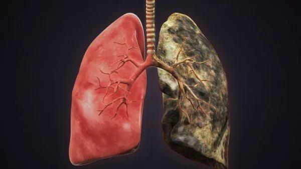 Рак легких доводит до инсульта