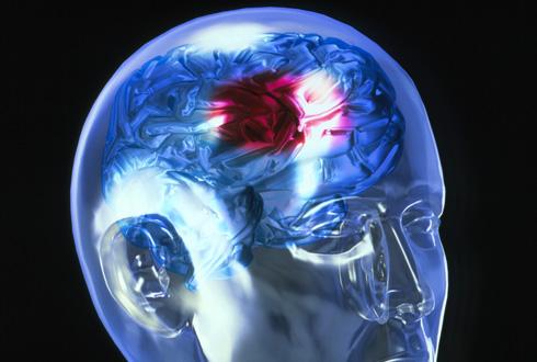 Что такое инсульт и почему он возникает: полная инструкция по выживанию