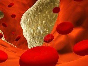 ТОП-5 натуральных средств для очищения сосудов и профилактики атеросклероза