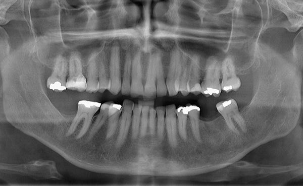 Проблемы имплантации зубов. Почему они отторгаться