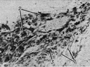 Пахименингиты