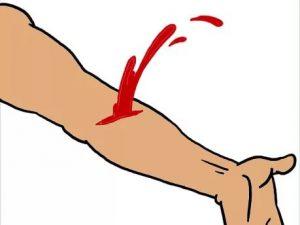 Как остановить артериальное кровотечение в домашних условиях