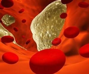 Атеросклероз: 5 натуральных средств для лечения и профилактики заболевания
