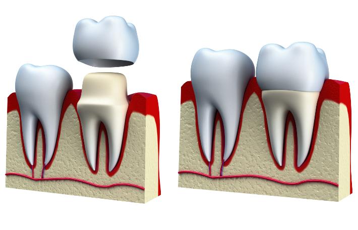 Надежные коронки в стоматологии «МегаДента»