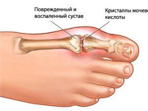 Артроз суставов ног: симптомы и лечение
