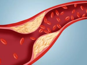 Сниженная функция почек способствует атеросклерозу
