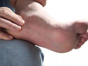 Облитерирующий эндартериит: симптомы и лечение