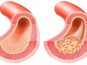 Облитерирующий атеросклероз: лечение и профилактика