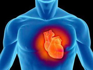 Дилатационная кардиомиопатия: причины, симптомы, лечение