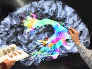 Синдром дефицита внимания и гиперактивности связали с деменцией