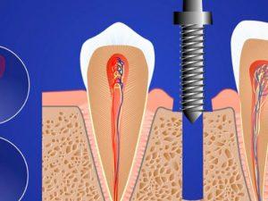 Восстановление утраченных зубов: какой метод выбрать?