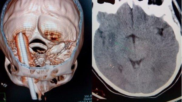 Ученые нашли эффективный способ лечения мигрени