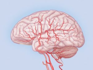 Лечение дискуляторной энцефалопатии