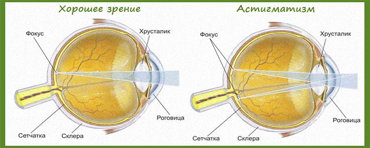 Виды и симптомы астигматизма