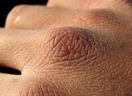 Ксероз — рекомендации для людей с очень сухой кожей