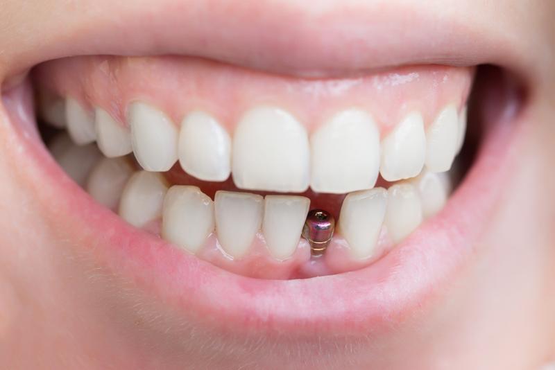 Особенности имплантации зубов в клинике «MicroDental»
