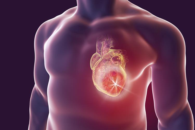 Сердечный приступ при диабете может ощущаться иначе