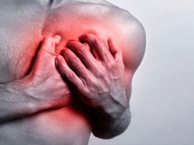 Дела сердечные: как мужчине защитить себя от инфаркта?