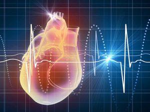 Послеинфарктный синдром
