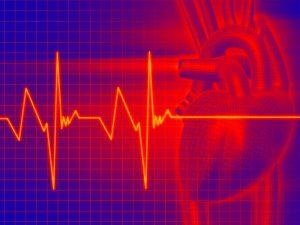 Изменение сердечного ритма: 8 натуральных средств для поддержки сердца