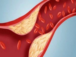 Жир в сосудах появляется не из-за питания