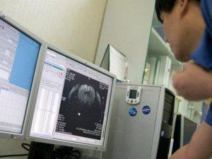 Ученые: тромбы в мозгу жертв инсульта не поздно удалять и через 16 часов