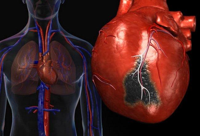 При сердечном приступе счет идет на секунды