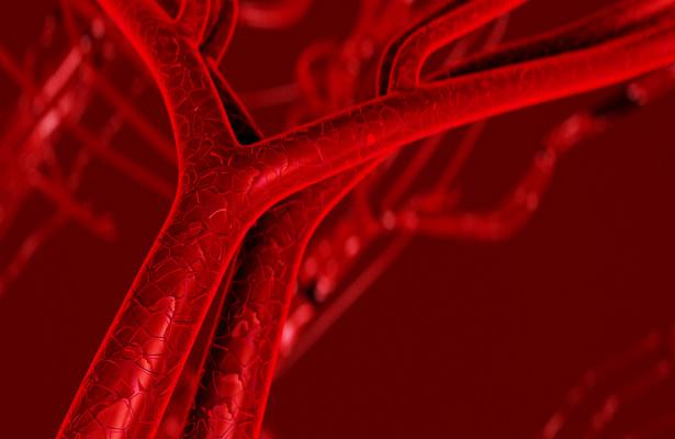 Найден способ спасти сосуды от атеросклероза