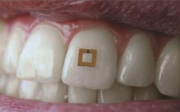 Зубной мини-датчик борется с ожирением и диабетом