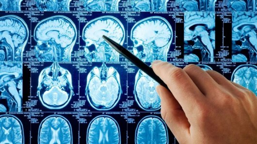 Эти пять мер профилактики инсульта считаются самыми эффективными