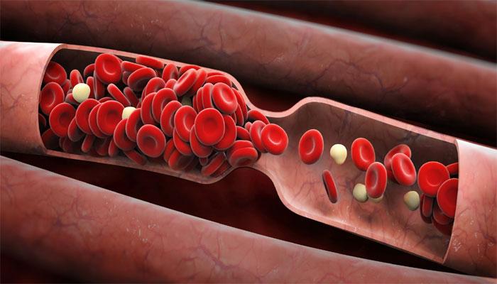 Что нужно знать о тромбе в сердце