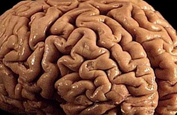 Длительность и тяжесть протекания диабета усиливает атрофические явления в мозге