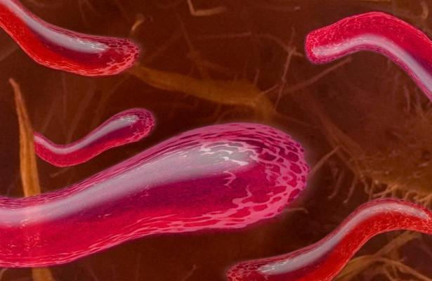 Кишечные бактерии —причина развития атеросклероза