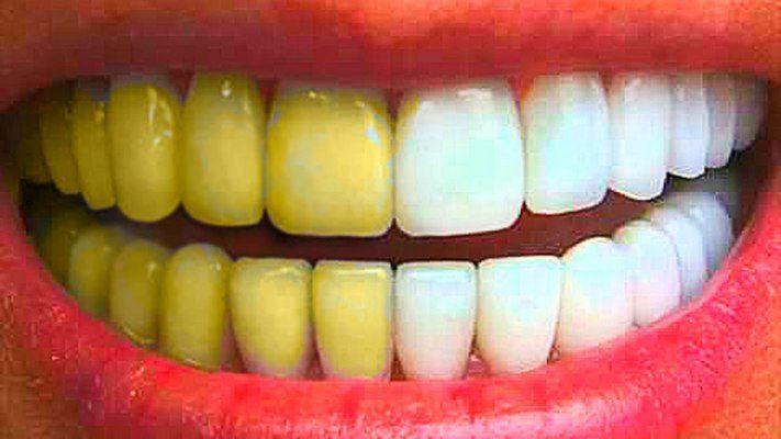 Как отбеливают зубы