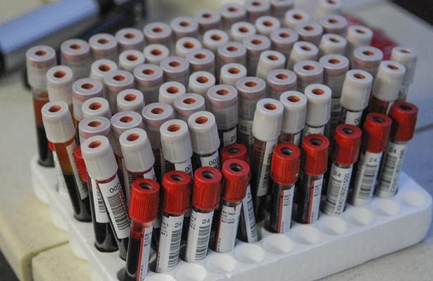 Анализы крови помогут лечить тяжелые болезни мозга