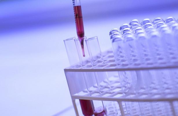 Что происходит, когда повышается уровень кальция в крови?