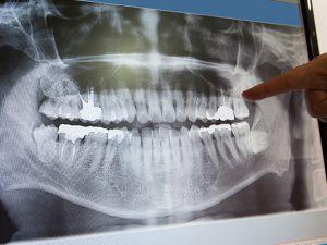 Где сделать ортопантомограмму?