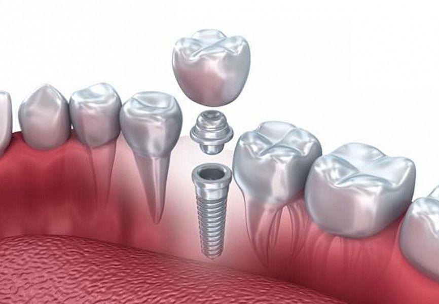 Стоматология — Имплант52